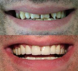 Before and After Zirconium Crowns
