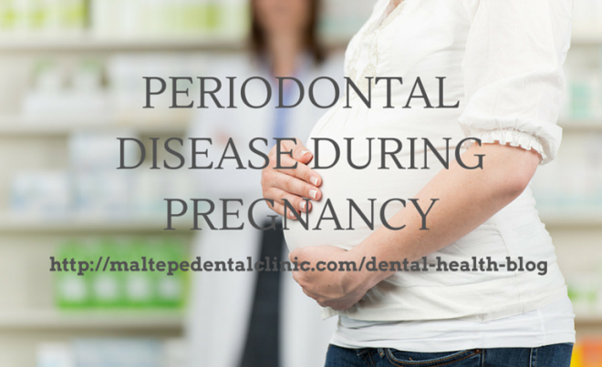 PERIODONTAL DISEASE DURING PREGNANCY