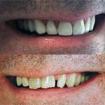 Before-After Pictures Veneers-8