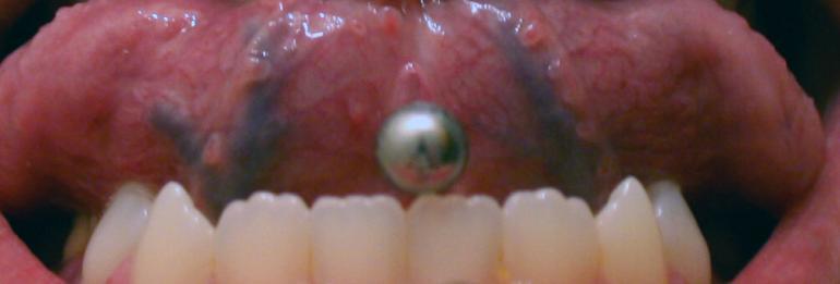 Zungenpiercing ja – aber Zähne schützen!